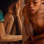 Cuộc sống nạn nhân chất độc da cam bị lãng quên ở Lào